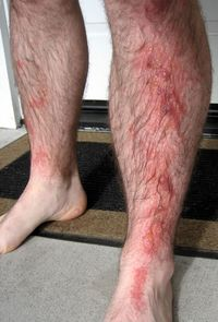 Pictures_of_rashes1